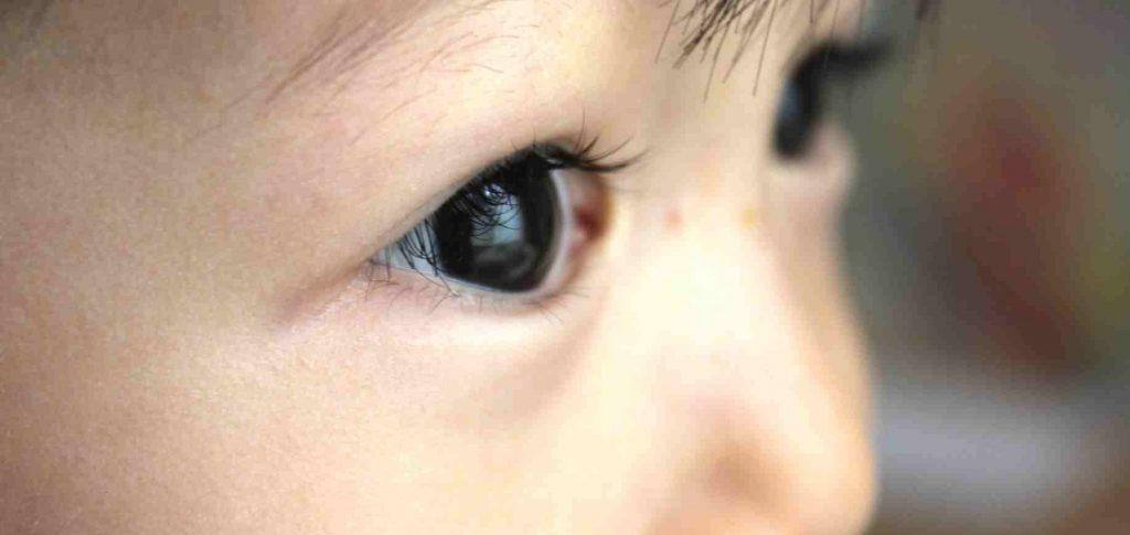 岡山市北区の小児眼科クリニック(近視治療)の説明です。